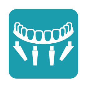 09-implantologia-a-carico-immediato